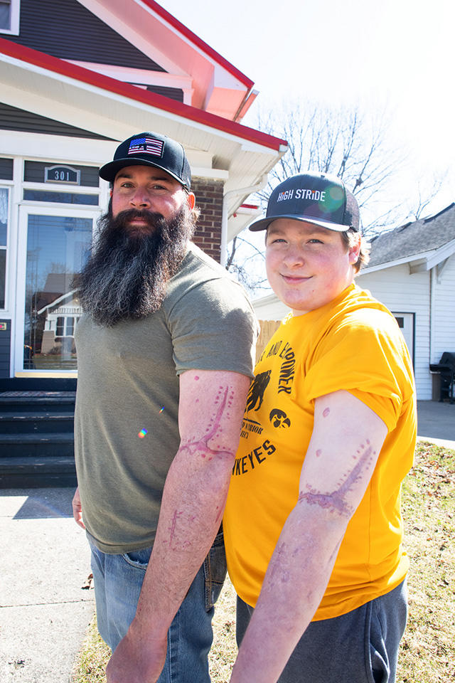 Father and son Rich and Todd Peters showing their matching scars. Rich's are tattoos that mirror his son's actual scars.